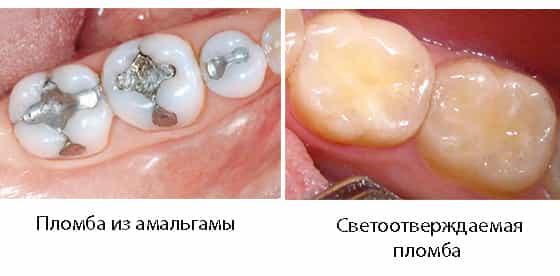 Если не ставить пломбу на зуб