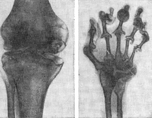 Костно-суставный туберкулёз первая медицинская помощь при вывихах сустава