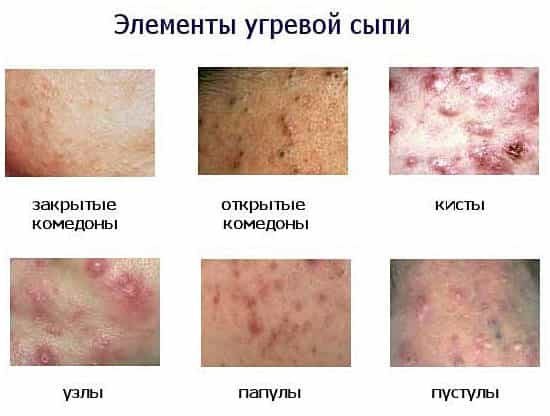 Чем лечить сыпь на лице в домашних условиях