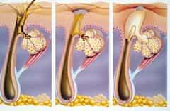 Увеличении сальных желез на половом члене