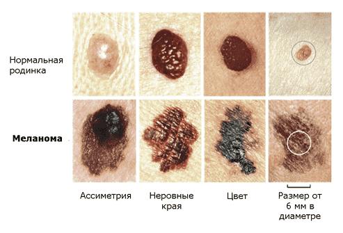 Папилломы на члене причины появления и лечение