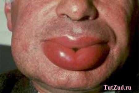 Головная боль и рвота признаки опасного заболевания