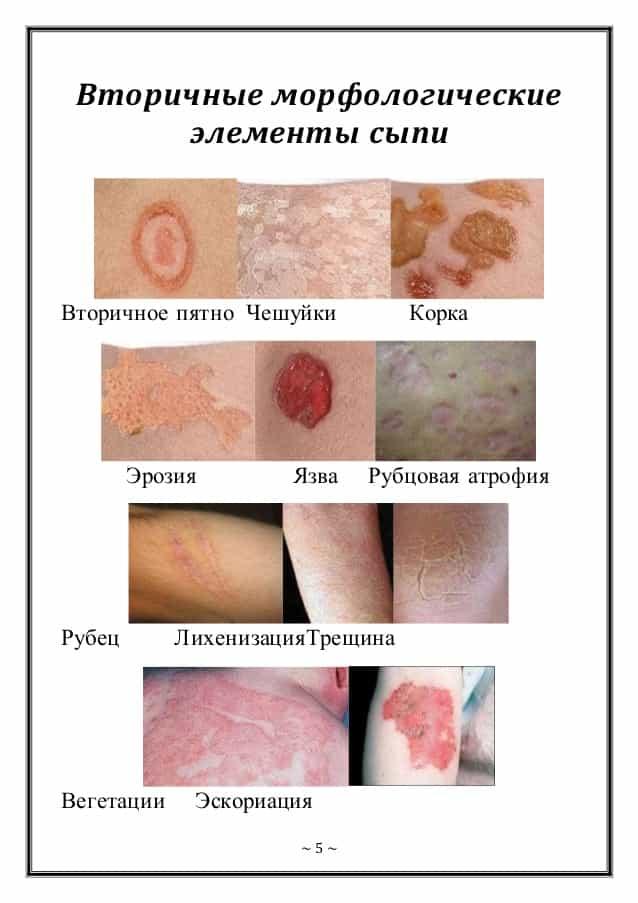 Кожные заболевания фото и описание и лечение
