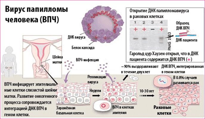 """¬ѕ"""" - онкогенный вирус. ¬ирус папилломы человека и"""