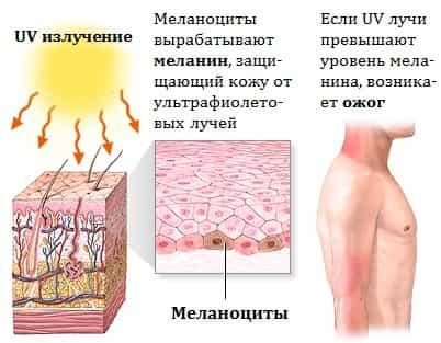 Ожог солнечный лечение в домашних условиях