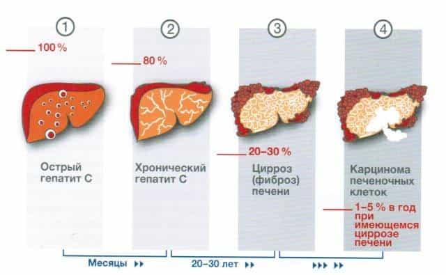 Вирусные гепатиты a b c d e и методики их лечения Этапы развития гепатита С в организме человека