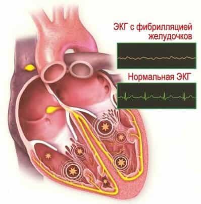 Аритмия предсердий сердца