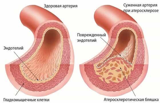 повышен холестерин у женщин после 50 лет