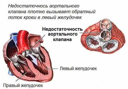 Предотвращение кальцитов аортального клапана
