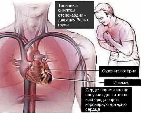 Ушиб шейного позвонка и лечение