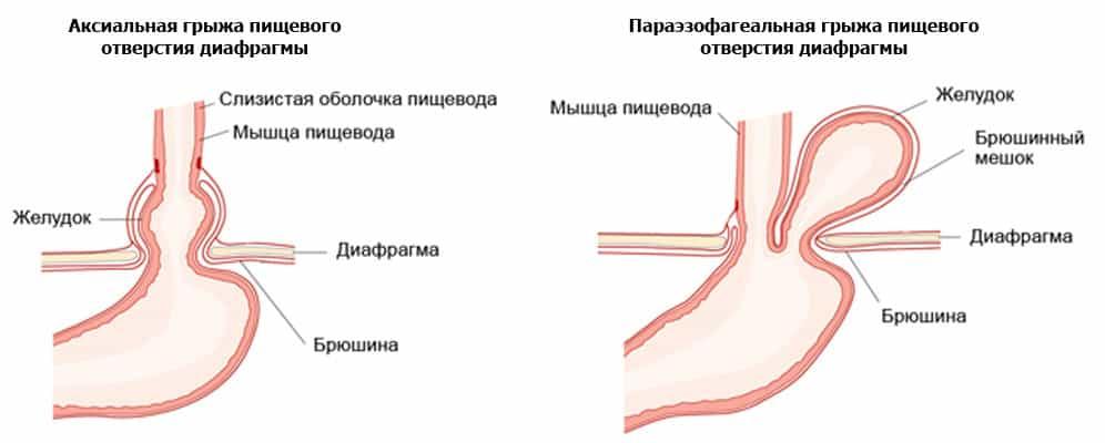 как лечить скользящую грыжу пищеводного отверстия диафрагмы