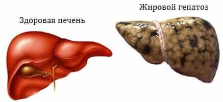 Что такое диффузные изменения печени?