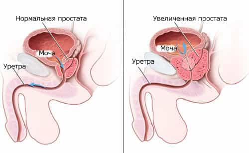 Лечение простатита в комплексе отзывы