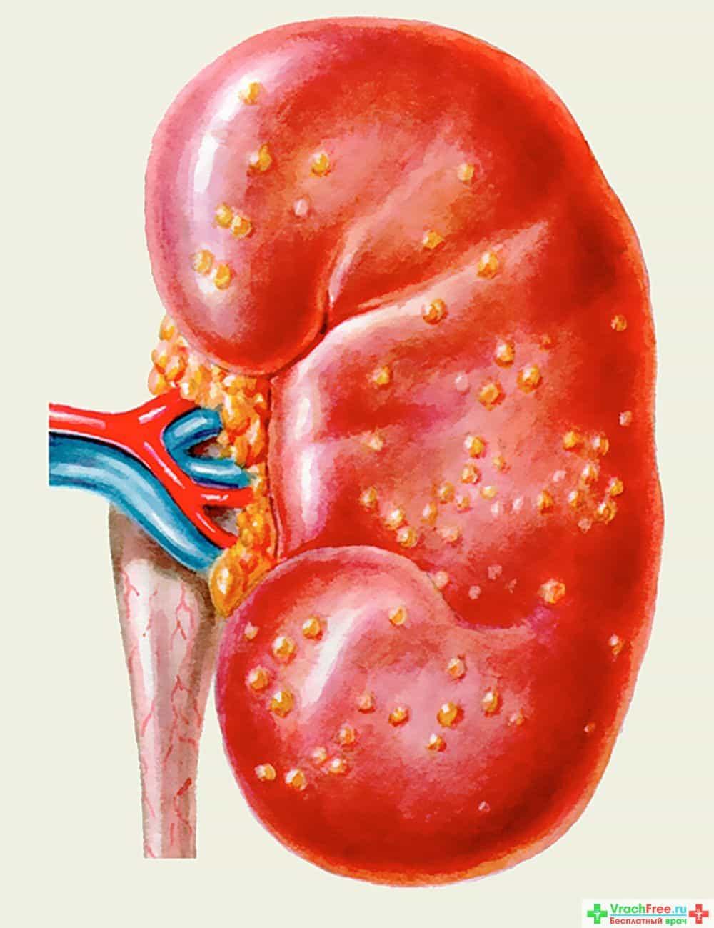Гломерулонефрит острый диффузный