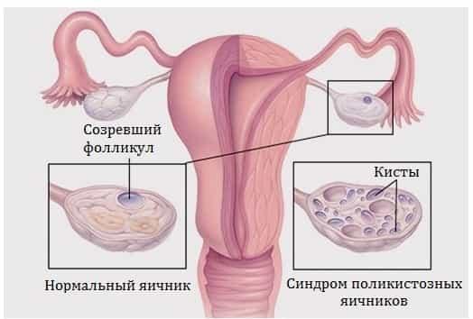 Лечение с билки при киста на яйчника
