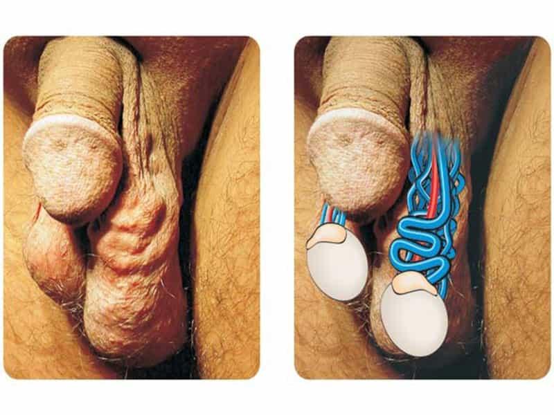 Сперма внутри на фото