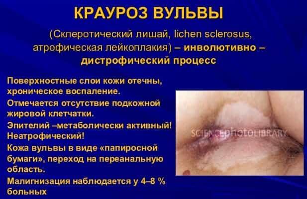 Менопауза дисплазия