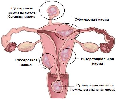 Зож рецепты от миомы матки - Интересные статьи и факты! Axonopal.ru