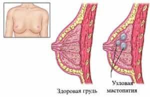Узловая мастопатия