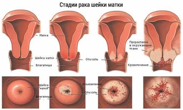 Как лечить эрозию шейки матки если она большая