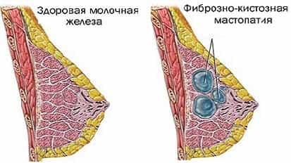 Беременность и фиброзная мастопатия