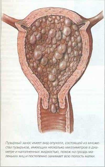 Плацентарный полип у беременных 1
