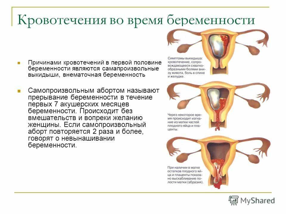 Почему идут выделения кровянистые при беременности