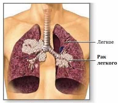 Признаки рака легких от курения